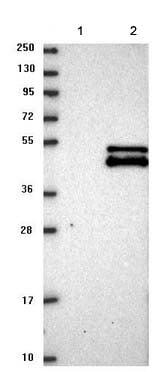 Western blot - Anti-MTERFD2 antibody (ab121910)