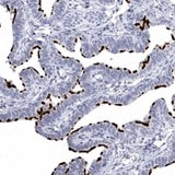 Immunohistochemistry (Formalin/PFA-fixed paraffin-embedded sections) - Anti-C1orf114 antibody (ab121924)