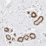 Immunohistochemistry (Formalin/PFA-fixed paraffin-embedded sections) - Anti-KIAA0146 antibody (ab121925)