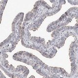 Immunohistochemistry (Formalin/PFA-fixed paraffin-embedded sections) - Anti-KIF26B  antibody (ab121952)