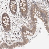 Immunohistochemistry (Formalin/PFA-fixed paraffin-embedded sections) - Anti-LRRC67 antibody (ab121963)