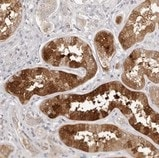 Immunohistochemistry (Formalin/PFA-fixed paraffin-embedded sections) - Anti-AHDC1 antibody (ab122007)