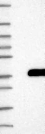 Western blot - Anti-GPR157 antibody (ab122010)