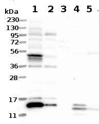 Western blot - Anti-ATP6V1G3 antibody (ab122012)