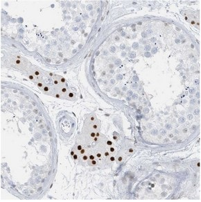 Immunohistochemistry (Formalin/PFA-fixed paraffin-embedded sections) - Anti-Putative uncharacterized protein LOC388820 antibody (ab122033)