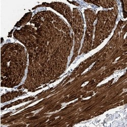 Immunohistochemistry (Formalin/PFA-fixed paraffin-embedded sections) - Anti-C1orf85 antibody (ab122035)