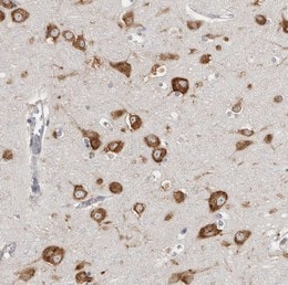 Immunohistochemistry (Formalin/PFA-fixed paraffin-embedded sections) - Anti-FAM167B antibody (ab122052)