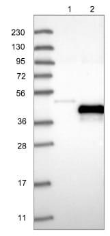 Western blot - Anti-PRPH2 antibody (ab122057)