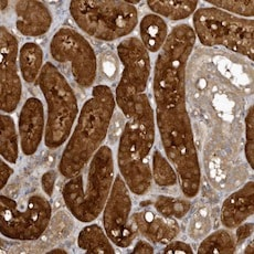Immunohistochemistry (Formalin/PFA-fixed paraffin-embedded sections) - Anti-EXOC3L1 antibody (ab122068)