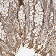 Immunohistochemistry (Formalin/PFA-fixed paraffin-embedded sections) - Anti-ZNF543 antibody (ab122080)