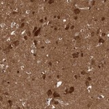 Immunohistochemistry (Formalin/PFA-fixed paraffin-embedded sections) - Anti-DIP2C antibody (ab122102)