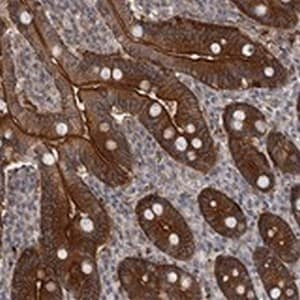 Immunohistochemistry (Formalin/PFA-fixed paraffin-embedded sections) - Anti-FRMD1 antibody (ab122108)