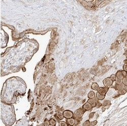 Immunohistochemistry (Formalin/PFA-fixed paraffin-embedded sections) - Anti-C4orf21 antibody (ab122126)