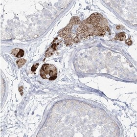 Immunohistochemistry (Formalin/PFA-fixed paraffin-embedded sections) - Anti-ZNF843 antibody (ab122140)