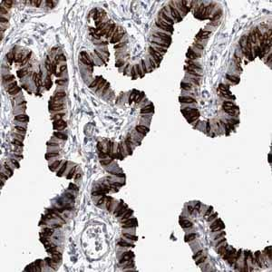 Immunohistochemistry (Formalin/PFA-fixed paraffin-embedded sections)-Anti-RSPH4A antibody(ab122159)