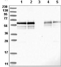 Western blot - Anti-BSDC1 antibody (ab122170)