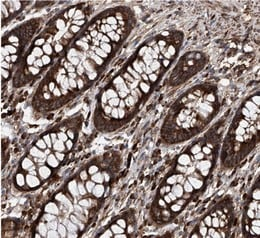 Immunohistochemistry (Formalin/PFA-fixed paraffin-embedded sections) - Anti-ASCC3 antibody (ab122181)