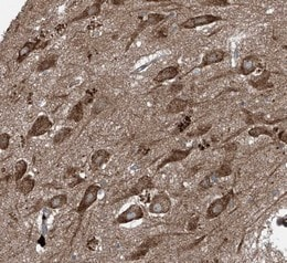 Immunohistochemistry (Formalin/PFA-fixed paraffin-embedded sections) - Anti-FOXRED2 antibody (ab122182)