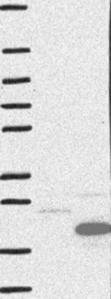 Western blot - Anti-CCDC56 antibody (ab122199)