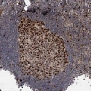 Immunohistochemistry (Formalin/PFA-fixed paraffin-embedded sections) - Anti-KIF4A antibody (ab122227)