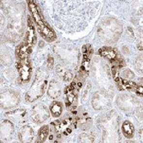 Immunohistochemistry (Formalin/PFA-fixed paraffin-embedded sections) - Anti-XIRP2 antibody (ab122234)