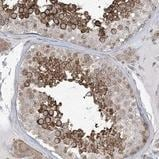 Immunohistochemistry (Formalin/PFA-fixed paraffin-embedded sections) - Anti-C6orf174 antibody (ab122272)