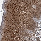Immunohistochemistry (Formalin/PFA-fixed paraffin-embedded sections) - Anti-AP1AR antibody (ab122296)