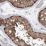 Immunohistochemistry (Formalin/PFA-fixed paraffin-embedded sections) - Anti-KAAG1 antibody (ab122304)