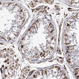 Immunohistochemistry (Formalin/PFA-fixed paraffin-embedded sections) - Anti-ALG1L antibody (ab122308)