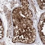 Immunohistochemistry (Formalin/PFA-fixed paraffin-embedded sections) - Anti-FAM162B antibody (ab122309)