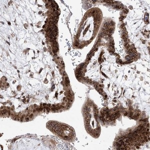 Immunohistochemistry (Formalin/PFA-fixed paraffin-embedded sections) - Anti-ARHGAP31 antibody (ab122331)
