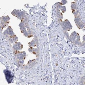 Immunohistochemistry (Formalin/PFA-fixed paraffin-embedded sections) - Anti-DNAH6 antibody (ab122333)