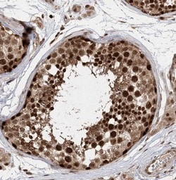 Immunohistochemistry (Formalin/PFA-fixed paraffin-embedded sections) - Anti-TEX15 antibody (ab122364)