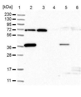 Western blot - Anti-PP2D1 antibody (ab122375)