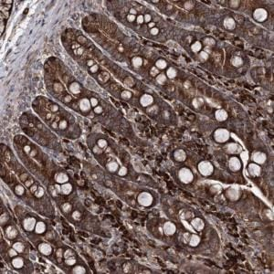 Immunohistochemistry (Formalin/PFA-fixed paraffin-embedded sections) - Anti-RGNEF antibody (ab122399)
