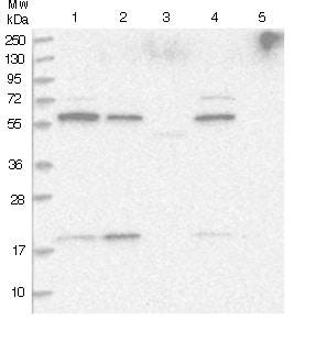 Western blot - Anti-DTHD1 antibody (ab122412)
