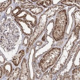 Immunohistochemistry (Formalin/PFA-fixed paraffin-embedded sections) - Anti-SEC24B antibody (ab122445)