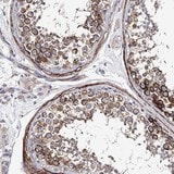 Immunohistochemistry (Formalin/PFA-fixed paraffin-embedded sections) - Anti-Epiphycan antibody (ab122449)