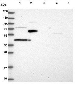 Western blot - Anti-ST7 antibody (ab122459)