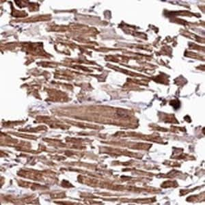 Immunohistochemistry (Formalin/PFA-fixed paraffin-embedded sections) - Anti-ST7 antibody (ab122459)