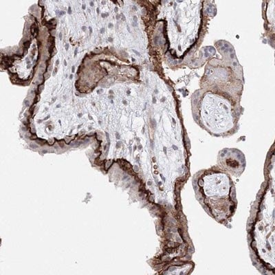 Immunohistochemistry (Formalin/PFA-fixed paraffin-embedded sections) - Anti-C11orf52 antibody (ab122467)