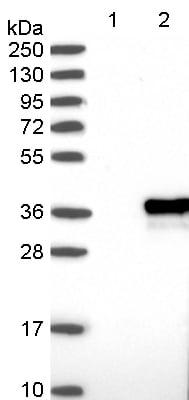 Western blot - Anti-ZCCHC9 antibody (ab122470)