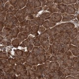 Immunohistochemistry (Formalin/PFA-fixed paraffin-embedded sections) - Anti-GRIP1 antibody (ab122514)