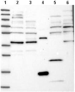Western blot - Anti-C6orf168  antibody (ab122534)