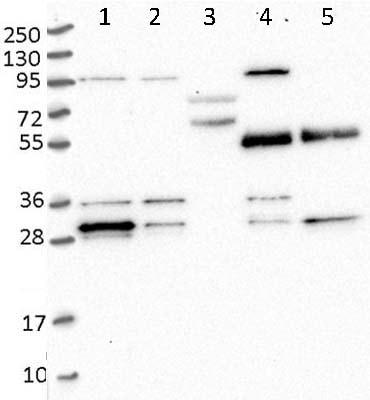 Western blot - Anti-PPTC7 antibody (ab122548)