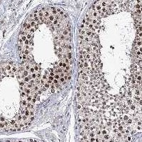 Immunohistochemistry (Formalin/PFA-fixed paraffin-embedded sections) - Anti-SMCHD1 antibody (ab122555)
