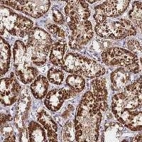 Immunohistochemistry (Formalin/PFA-fixed paraffin-embedded sections) - Anti-C3orf20 antibody (ab122561)