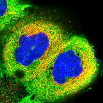 Immunocytochemistry/ Immunofluorescence -  (ab122570)