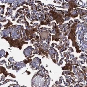 Immunohistochemistry (Formalin/PFA-fixed paraffin-embedded sections) - Anti-DNHD1 antibody (ab122574)