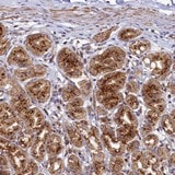 Immunohistochemistry (Formalin/PFA-fixed paraffin-embedded sections) - Anti-BET1L antibody (ab122591)